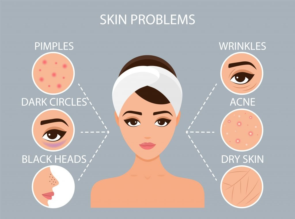 Girl has acne on her face. Before and after. Concept of skincare, pure and healthy skin. Vector illustration.