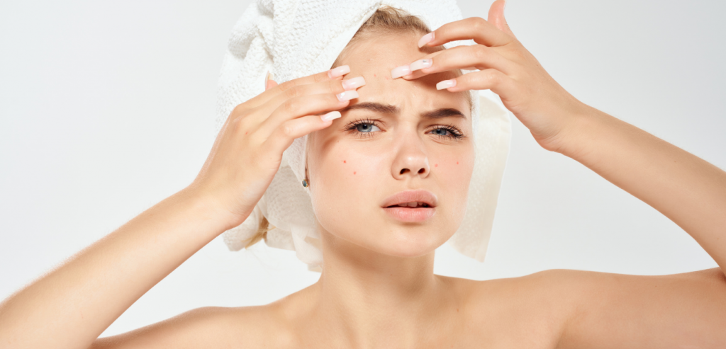 acne popping pimple patches